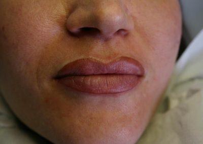 Bologna Contorno labbra Tatuaggio